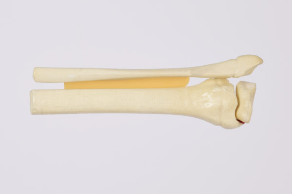 Orthopaedic Models for Surgical education