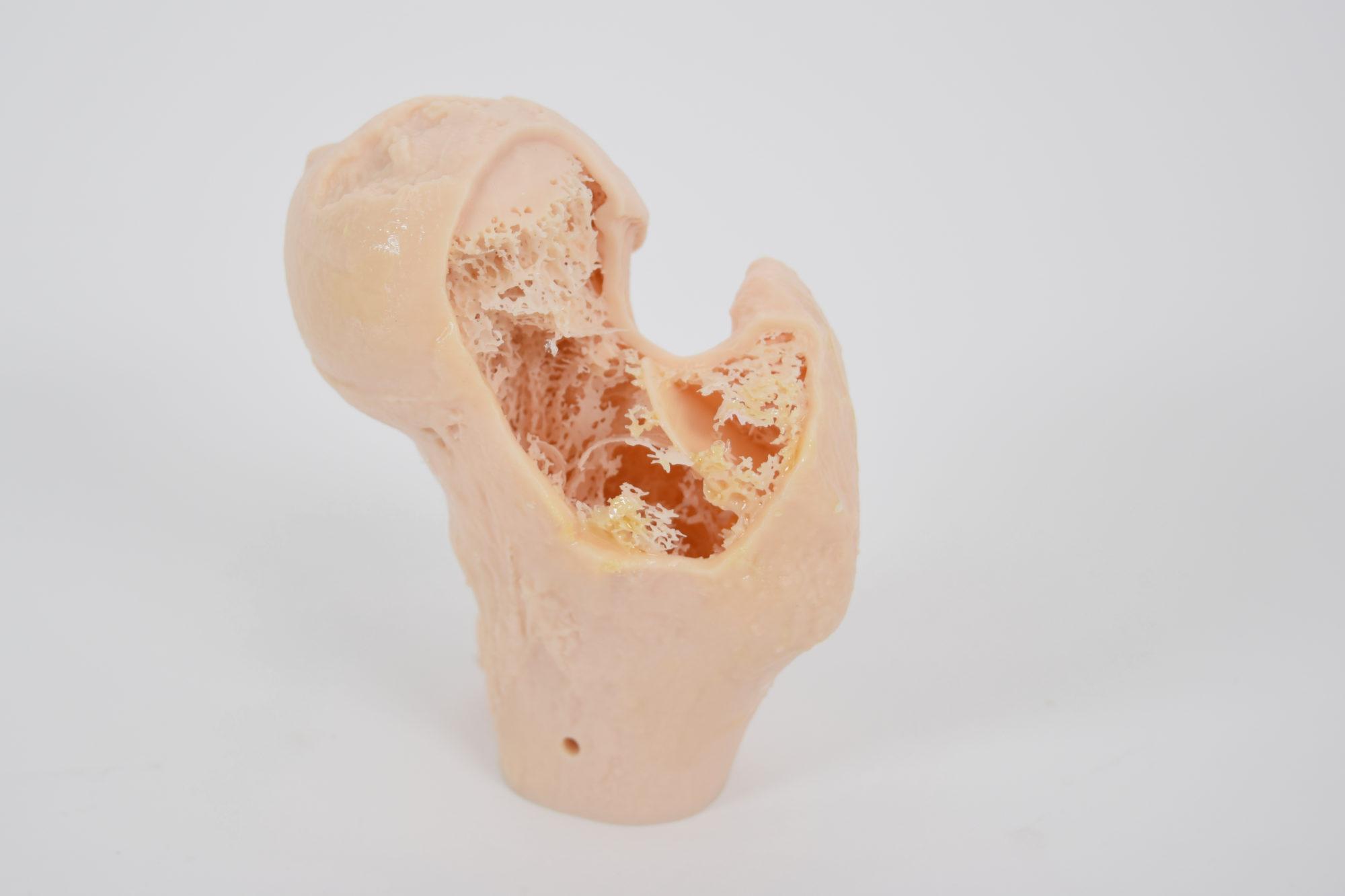 Osteoprorotic models