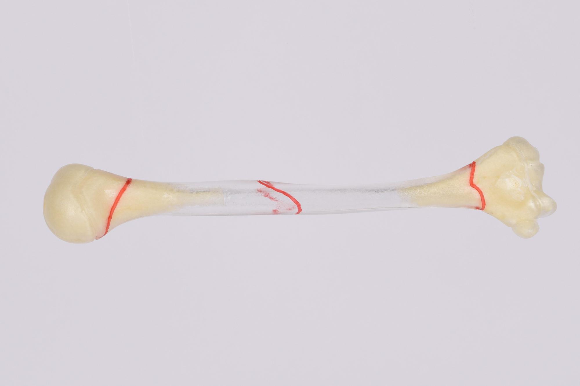Semi Transparent paedeatric model