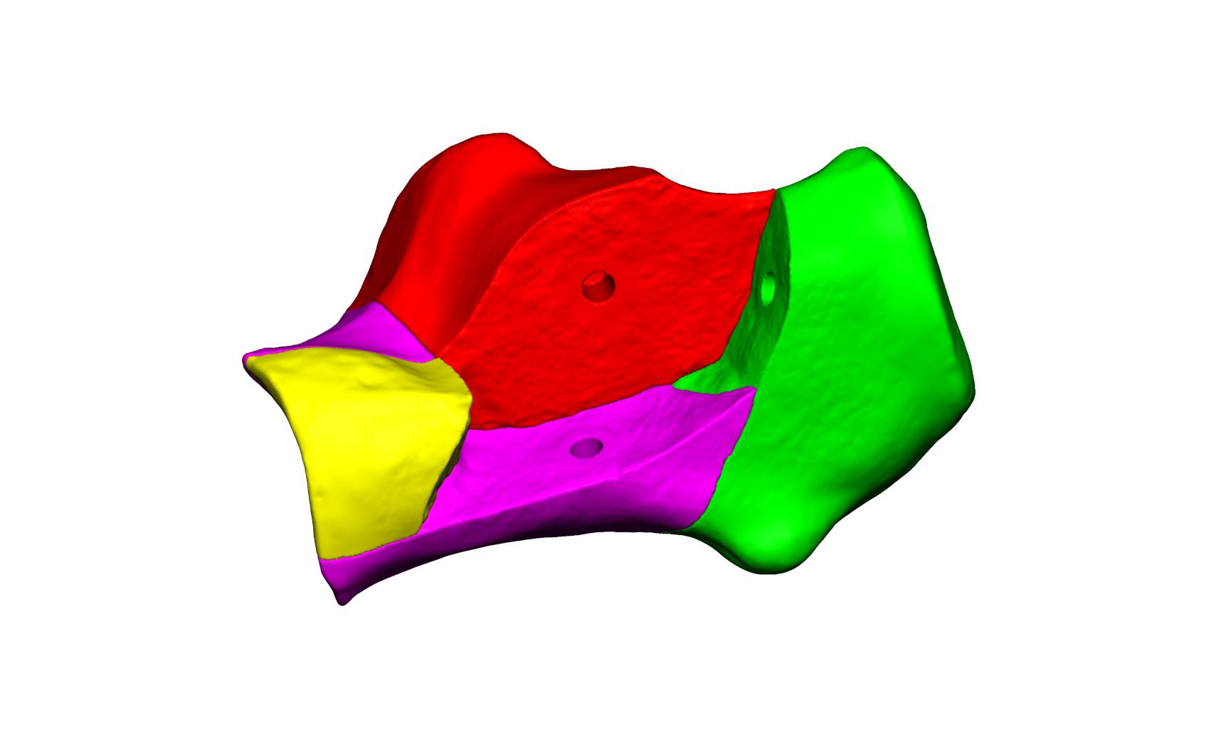 Magnet Calcaneus 2