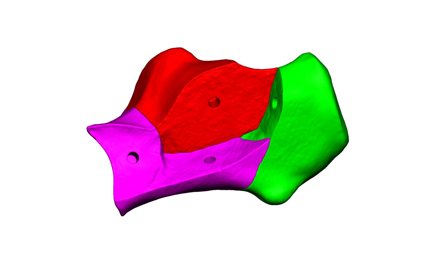 Magnet Calcaneus 3