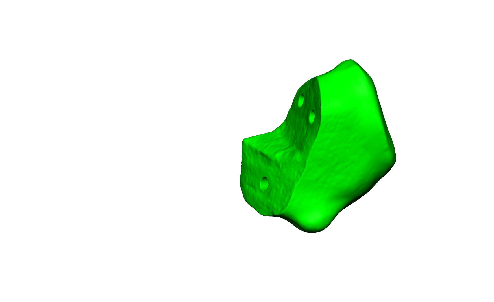 Magnet Calcaneus 5